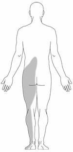 sciatica pain location