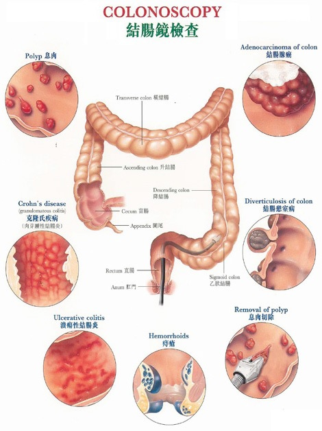 Gastro-intestinal | Doctor Articles | Asia Medical Specialists